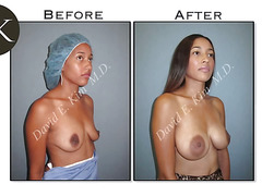 Dual Plane Breast b4 and after